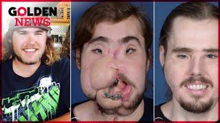 TELLEMENT DE CHANCE : Une greffe de visage qui est un véritable succès !