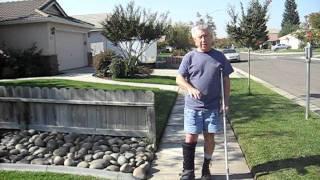 Calcaneus Fracture - starting to walk (Oct, 28 2011)