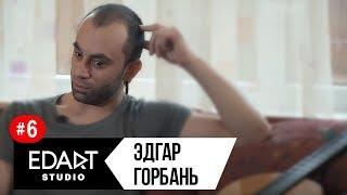 Эдгар Горбань - 10 лет без глаза / 10 gadus bez acs