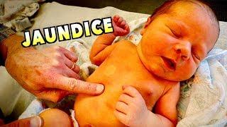 HELP! MY NEWBORN LOOKS YELLOW! (Jaundice) | Dr. Paul