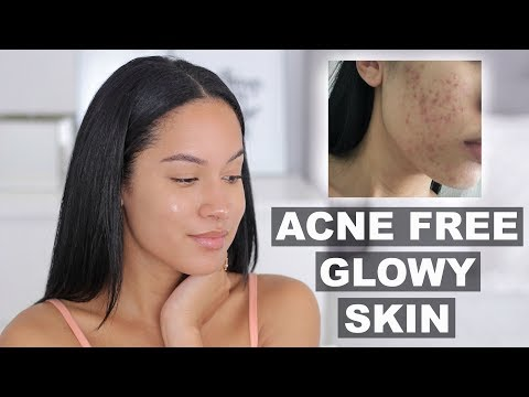 hqdefault - Acne Free Reviews Yahoo