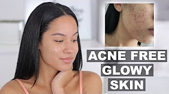 hqdefault - Ways To Keep Your Skin Acne Free