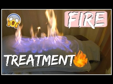 THIS IS CHINA - TCM FIRE TREATMENT