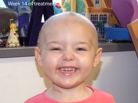 The face of treatment for childhood ALL leukaemia.