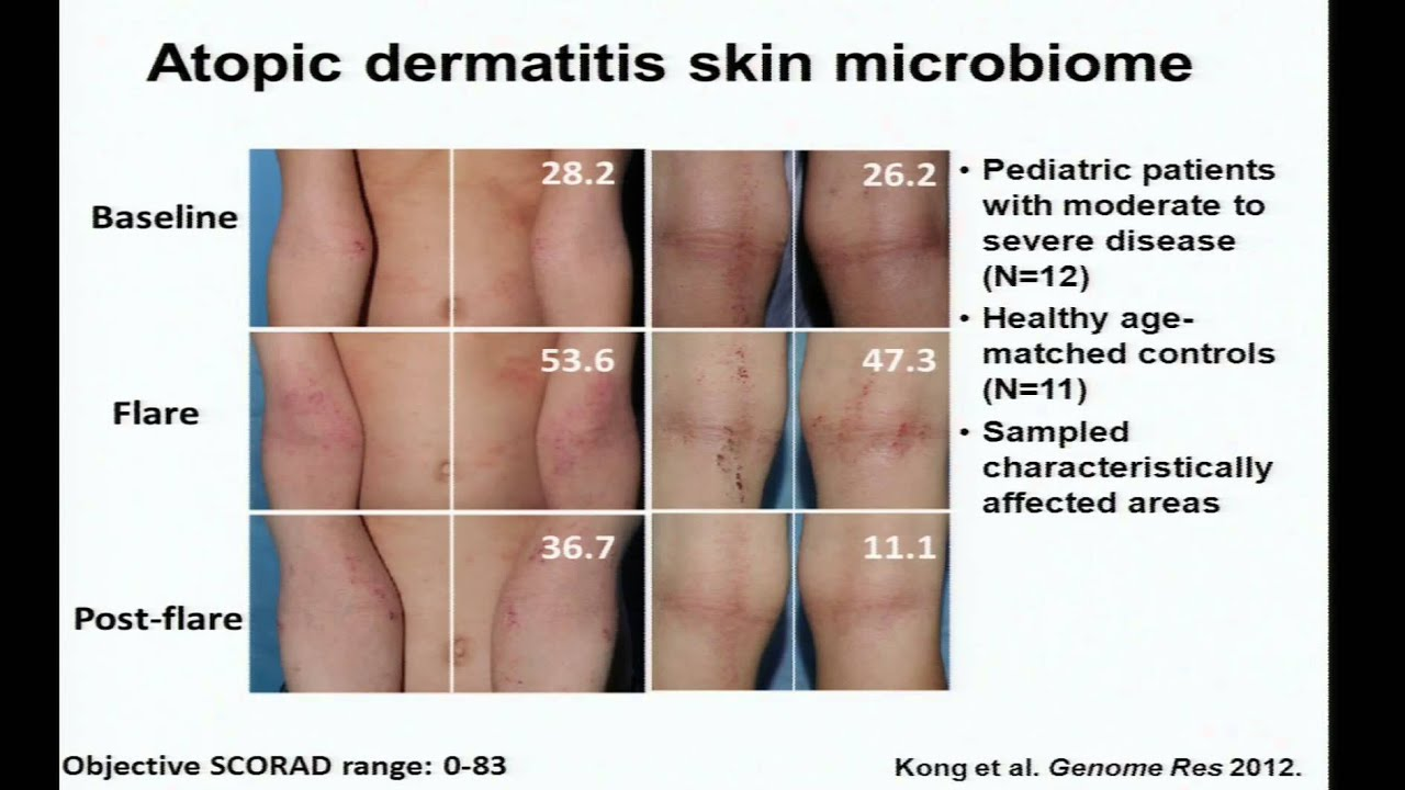 Eczema, Immunity and the Skin Microbiome - Heidi Kong ...