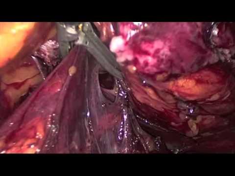 Dr  Pellicano - Endometriosis, Laparoscopic Rettosigma Resection