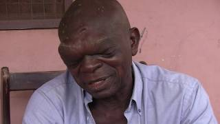 Buabeng's Natural Cures: Miracle Cancer Tumor Reduction