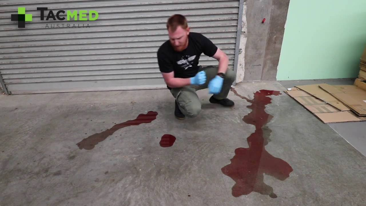 how much blood loss to die