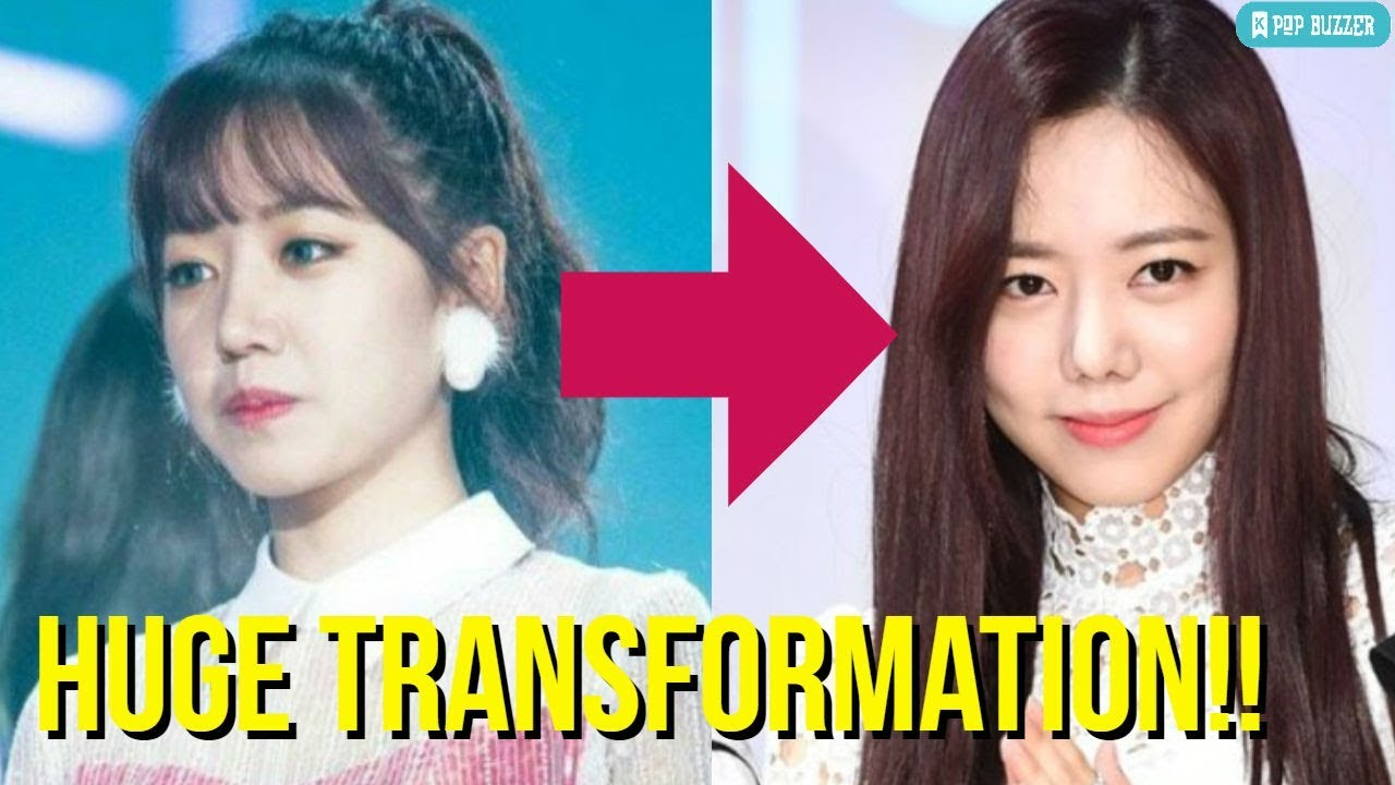 apink namjoo plastic surgery becomes viral news, plan a refused to