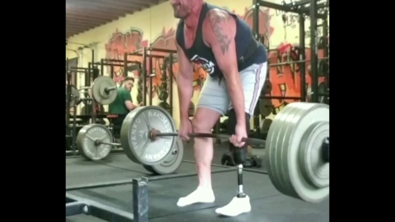 Our patient dead lifting 455 lbs