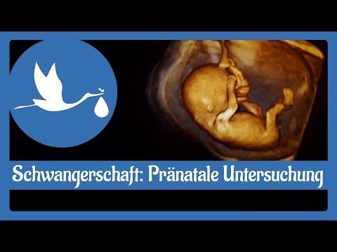 Schwangerschaft: Pränatale Untersuchung