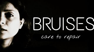 BRUISES : Care To Repair Before Its Too Late. Domestic Violence. Save Your Marriage & Hold Onto Love