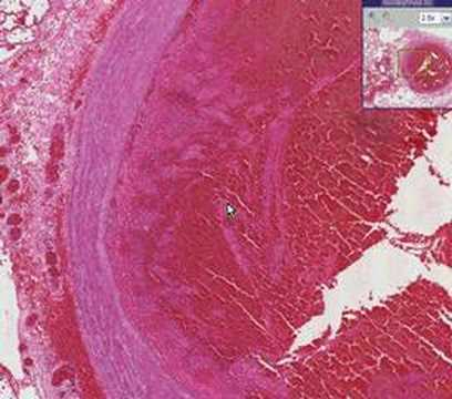 Histopathology Lung Thromboembolus Also Commonly Called T