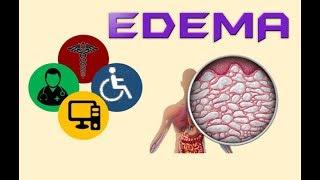 En edema dependiente medicina de definición