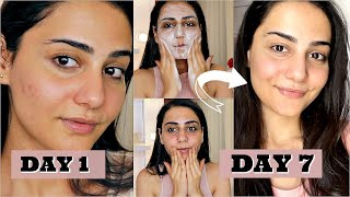 I TRIED KOREAN SKIN CARE FOR A WEEK AND I AM SHOOK! SIMMY GORAYA