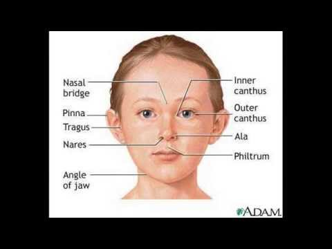 Down disease or Down's syndrome bệnh down.Congenital abnormally in children
