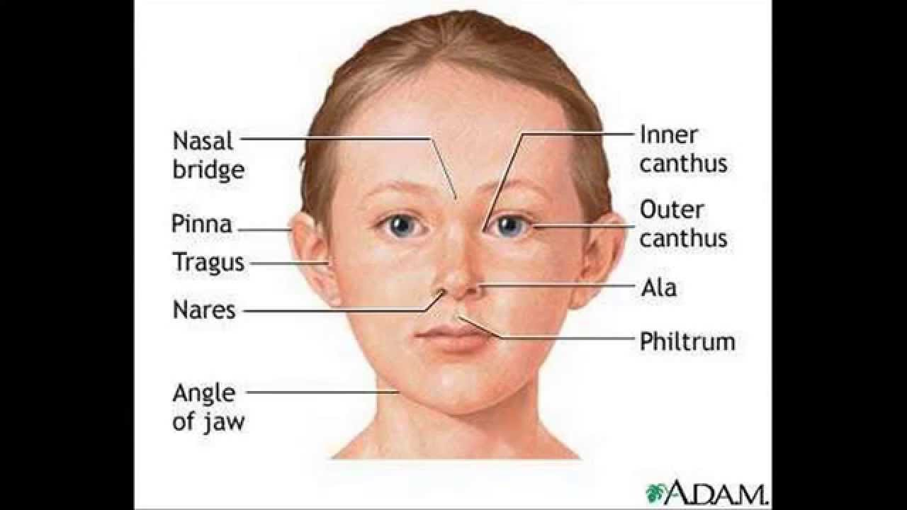 "the characteristics of fetal alcohol syndrome a birth defect Fetal alcohol syndrome is a characteristic pattern of mental and physical birth defects that results due to maternal use of alcohol during pregnancy (for more information on this disorder, choose ""fetal alcohol syndrome"" as your search term in the rare disease database)."