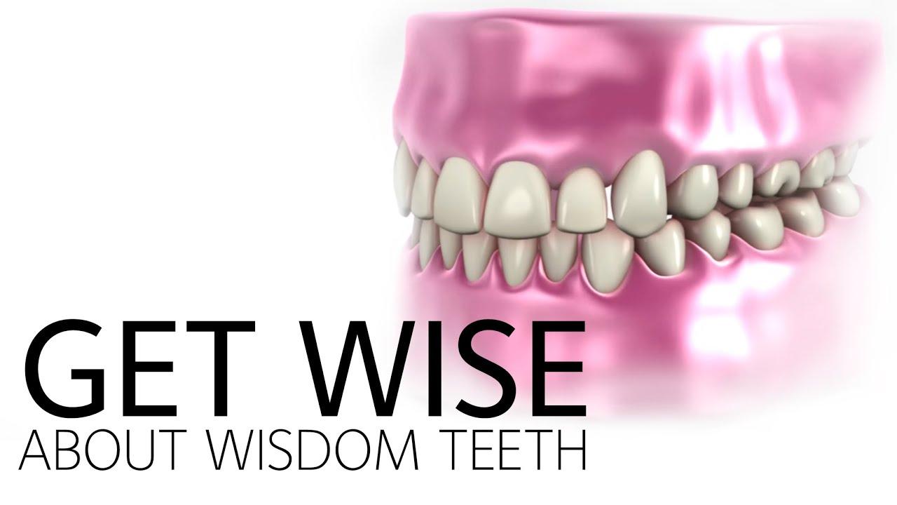 Wisdom Teeth - American Dental Association