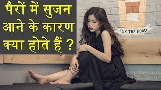 Leg swelling causes in hindi