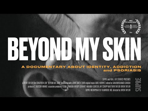 BEYOND MY SKIN: the battle against Stigma, Addiction and Psoriasis