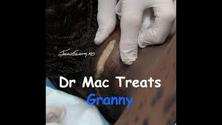 Dr. Mac Treats Granny Neck Lesion, Gators & More!