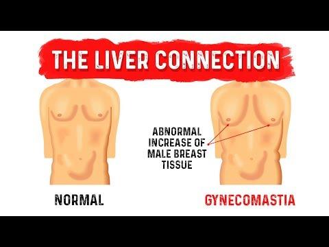 Gynecomastia (Man Boobs) and Your Liver