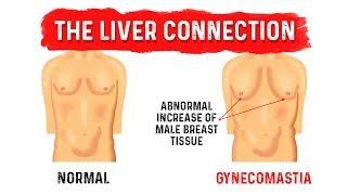 a zsírvesztés segít a gyno