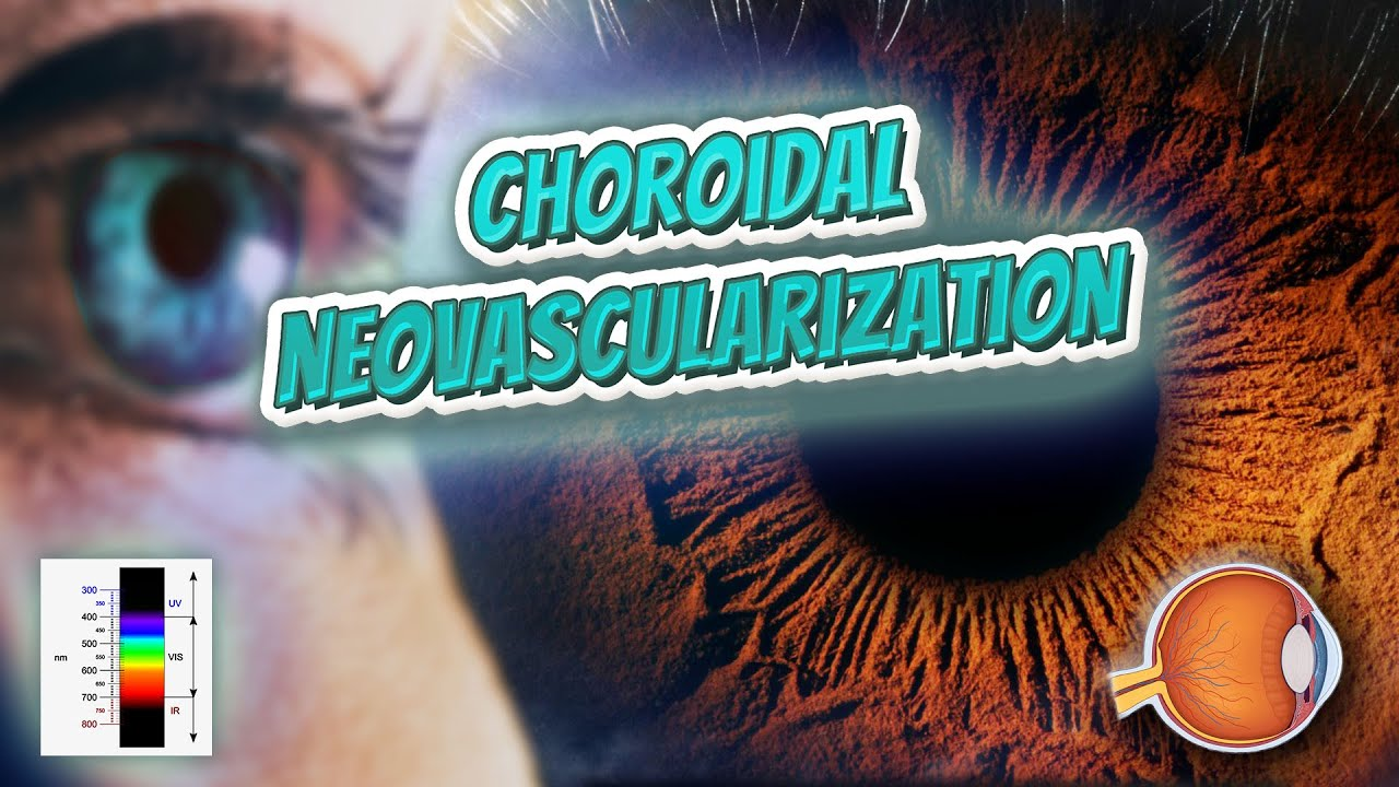 Choroidal fissure - Your EYEBALLS - EYNTK 👁 👁 💉😳💊🔊💯✅ - YouTube