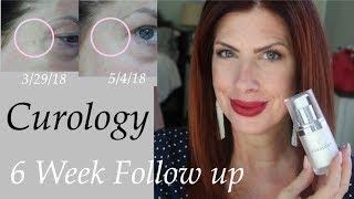 CUROLOGY 6 week follow up Beauty over 50