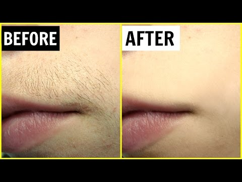 पाएं अनचाहे बालों से छुटकारा - Permanent Hair Removal | PrettyPriyaTV