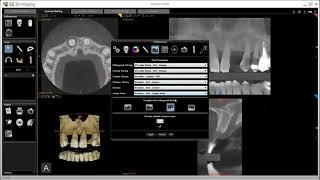 CS 3D Imaging Software Training: Editing Preferences
