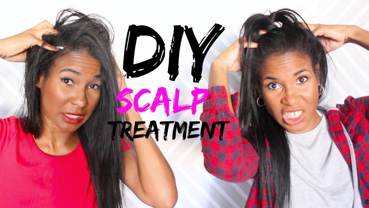 Diy Itchy Dry Scalp Hair Growth Treatment Youtube