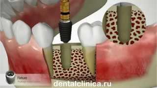 Лечение зубов красивая улыбка виниры коронки протезирование имплантация приятные цены(, 2014-03-25T19:35:33.000Z)