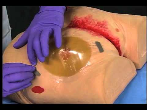 3m Tegaderm Hydrocolloid Dressing Application And Removal Youtube