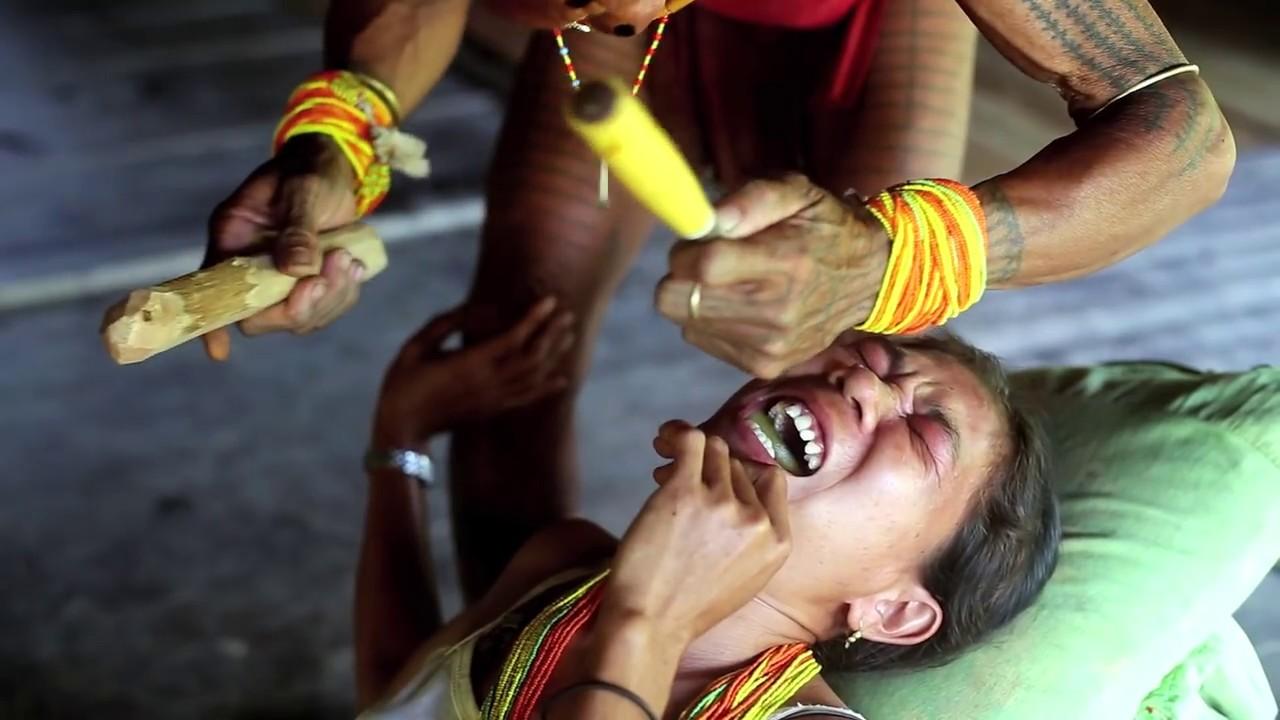 Kerik Gigi, Tradisi Menyakitkan & Simbol Kecantikan Suku Mentawai |  kumparan.com