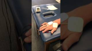Hand muscle stim for atrophy
