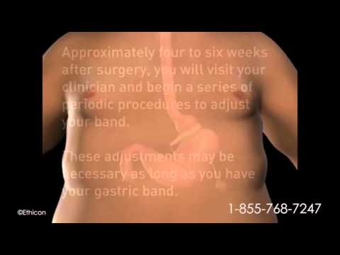 What is Gastric Banding? How Does Lap-Band Surgery Work?