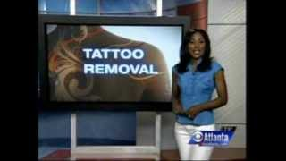 Tatto Removal & Job Interviews on CBS Top Stories Thumbnail