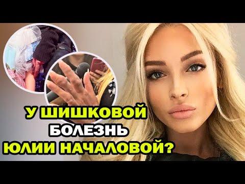 У Алены Шишковой подозревают болезнь как у Юлии Началовой. Неужели подагра?