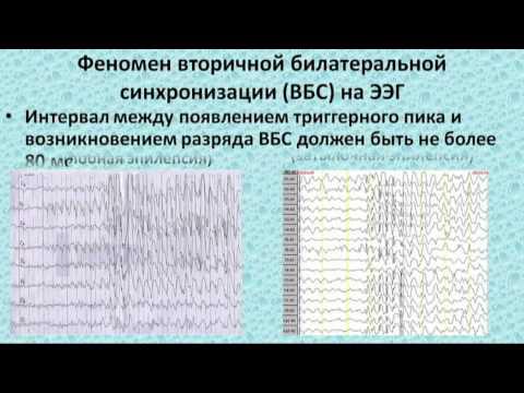 Формы эпилепсии – идиопатическая, фокальная, височная
