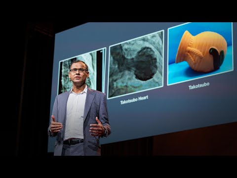 How Your Emotions Change The Shape Of Your Heart | Sandeep Jauhar