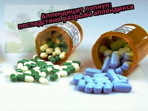 Аппендицит лопнул: последствия разрыва аппендикса