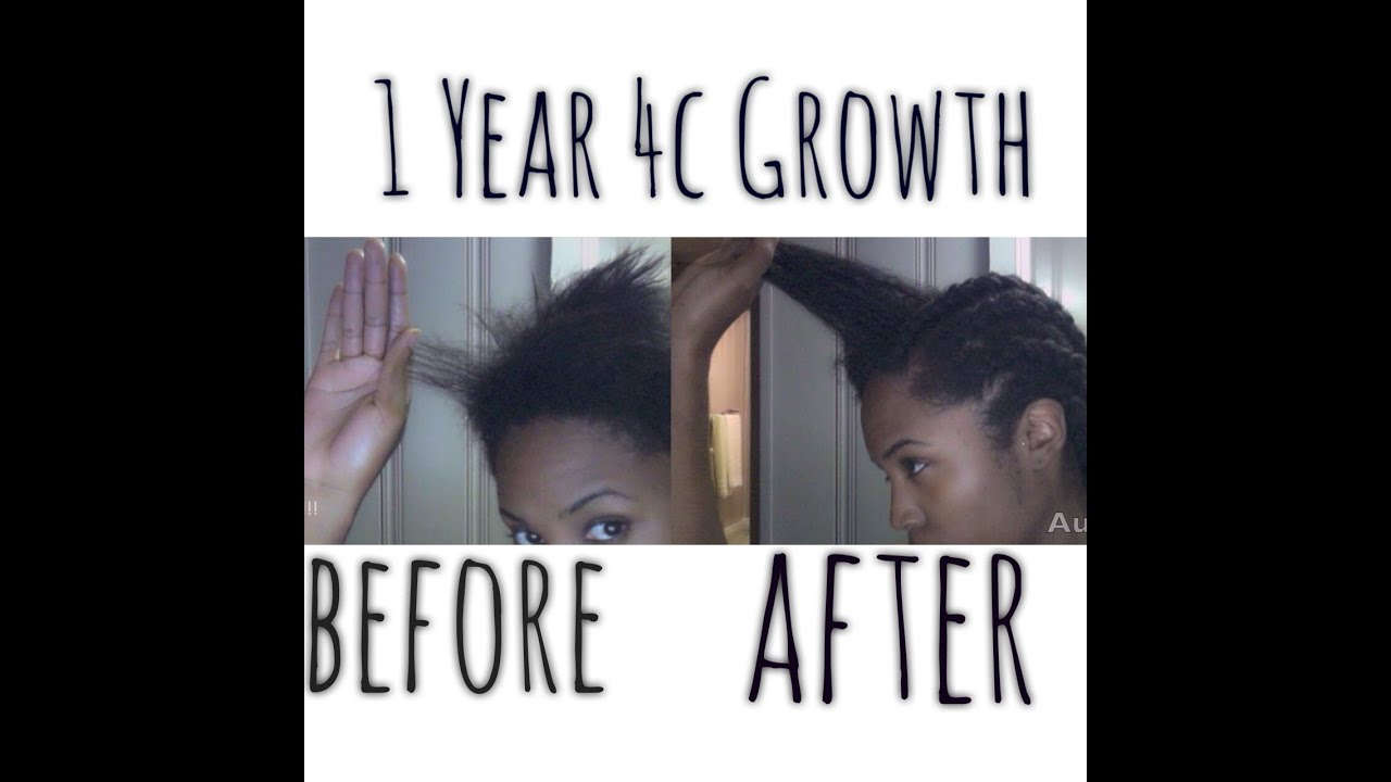 How I Grew 4c Hair FAST My Hair Story Good And Bad