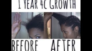 How I grew 4c Hair FAST: My hair story good and bad included Part 2 Thumbnail