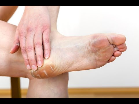 Лечение натоптышей на ступнях, натоптыши на ногах - видео