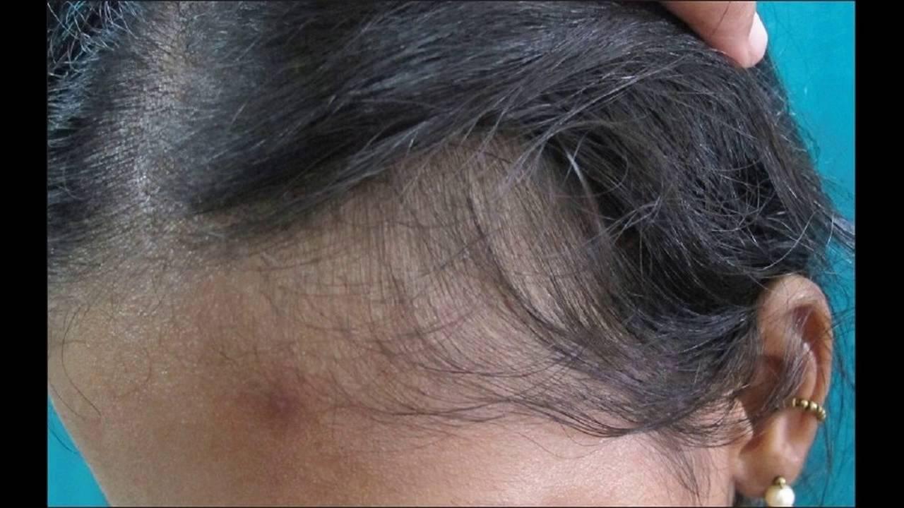 Telogen Effluvium Leads To Hair Loss Treatment Options