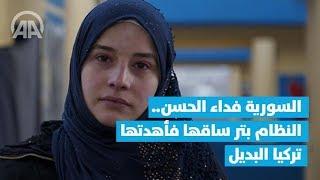 السورية فداء الحسن.. النظام بتر ساقها فأهدتها تركيا البديل