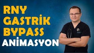 RNY Gastrik Bypass animasyon - Op. Dr. Fakı AKIN