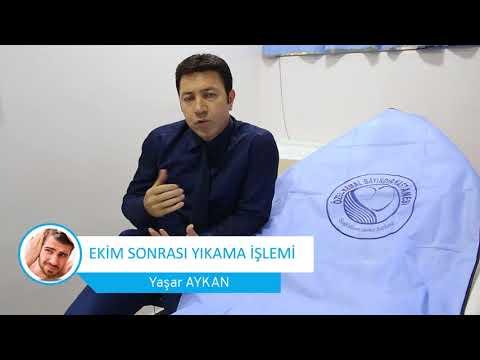 http://www.fuesacekim.net/video/sac-ekim-sonrasi-yikama-islemi