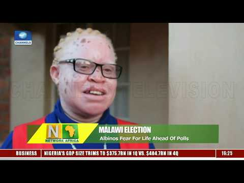 Albinos In Malawi Fear For Life Ahead Of General Elections |Network Africa|